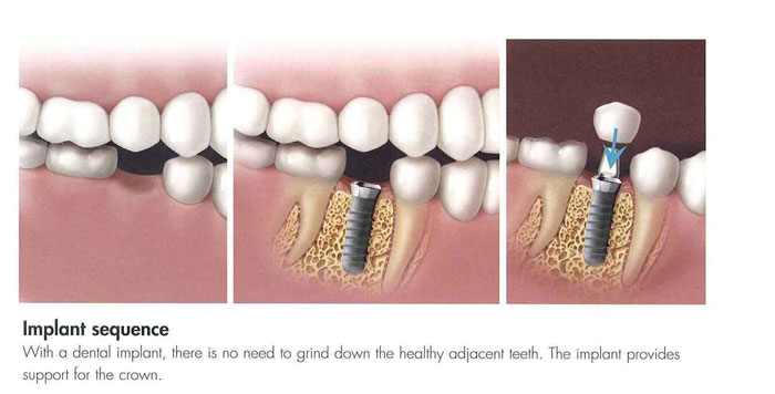 Hilliard Dental Implants diagram