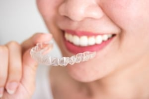 Invisalign Braces in Hilliard