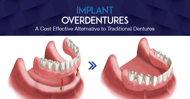 Implant Supported Denture Hilliard OH